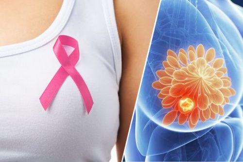 mamografias gratis